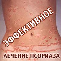 лечение псориаза фото