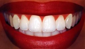 отбеливание зубов народными методами фото