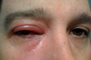 ресничный клещ симптомы фото и лечение