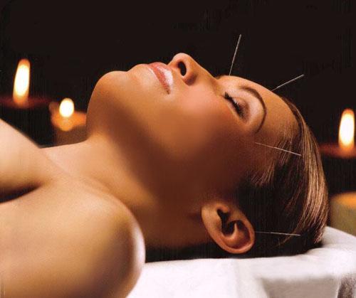 Миниатюра к статье Иглоукалывание может с успехом заменить лазерную косметологию