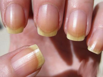 Миниатюра к статье Как отбелить ногти на руках и ногах в домашних условиях
